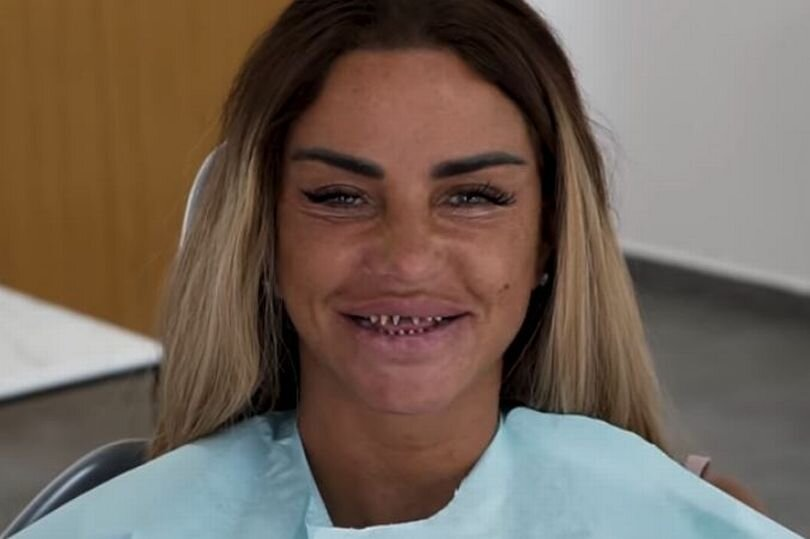 0_Katie-Price-shares-scary-video-of-her-teeth-shaved-down-to-pegs-as-she-gets-new-teeth.jpg
